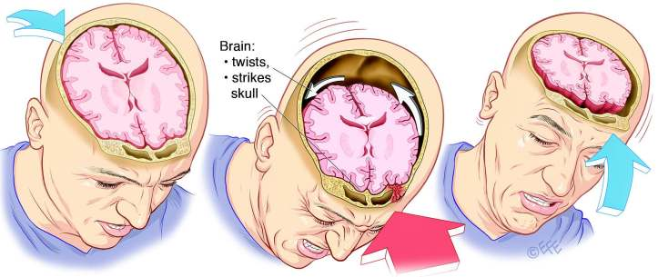 What-is-concussion-illustration_QBI-UQ.jpg