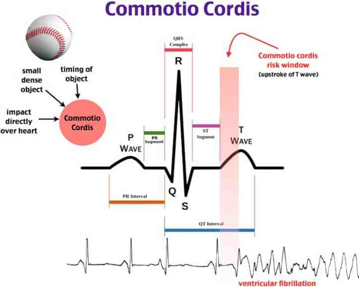 cordis-cardiac-sudden-pathophysiology-commotio-original